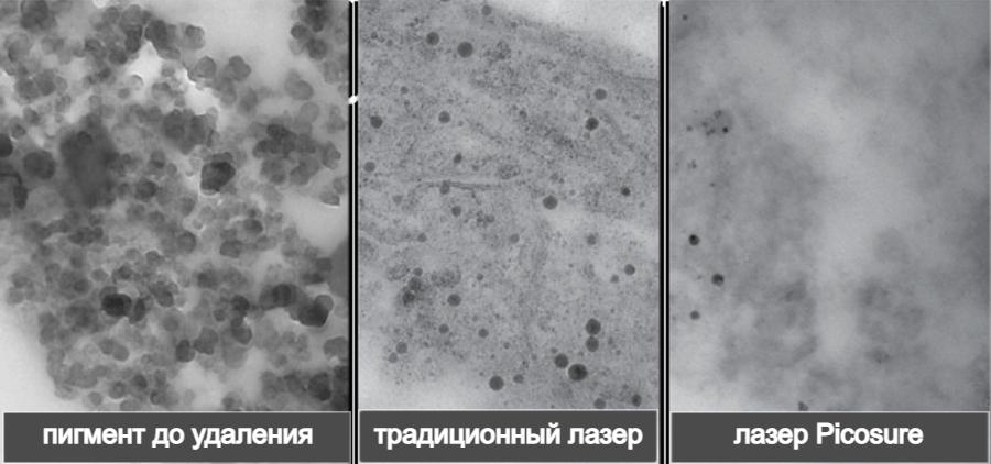 пигмент тату под микроскопом