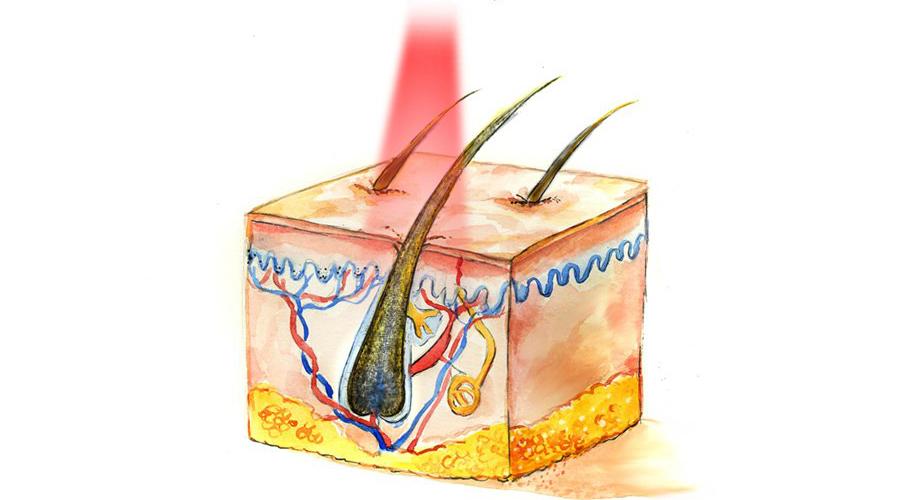лазерное удаление волос навсегда