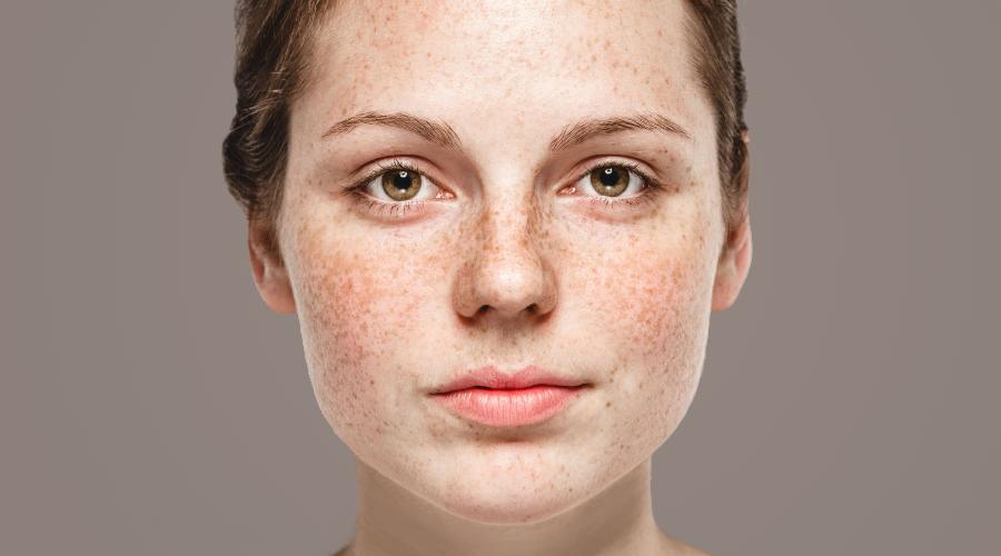 лазерное удаление гиперпигментации на лице
